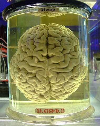 474px-human-brain1