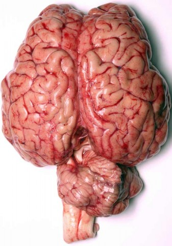 brain2